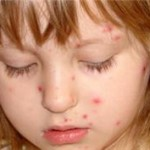 rubole-maladie-infantile-connaissance-informations