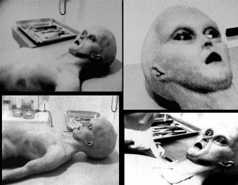 150746cadavres-d-extraterrestres-autopsie-jpg